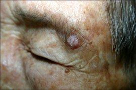 AD :: Annals of Dermatology