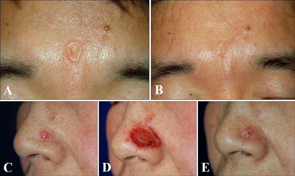 prednisone and allergy
