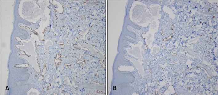 Congenital and Multiple Hobnail Hemangiomas