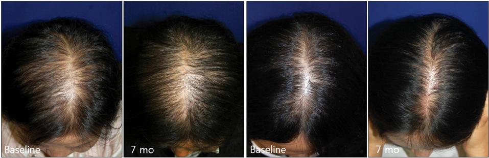 Efficacy Of Finasteride 1 25 Mg On Female Pattern Hair Loss Pilot Study